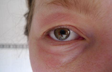 allergy in skin around eyes picture 5