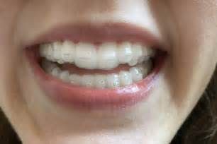 align of teeth after braces picture 14