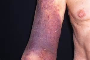 coumadin--effects on skin picture 15