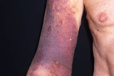 coumadin--any skin breaksts caused by this picture 1