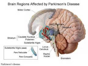 bladder problems in patients with parkinson's disease picture 10