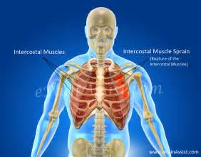 intercostal muscle pain picture 9