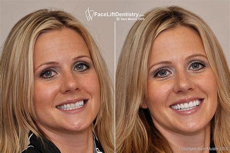 cost of teeth veneers picture 5