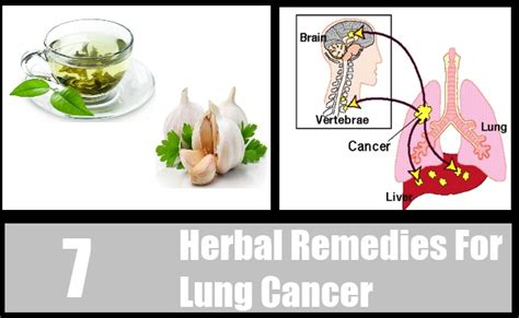 herbs for lung cancer picture 7