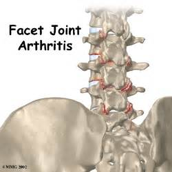 facet joint arthropathy picture 1