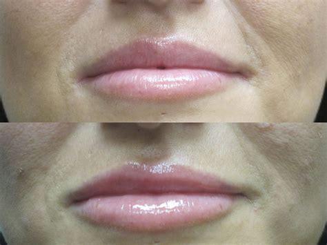 Lip enlargement picture 5