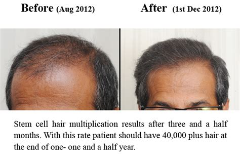 stem cell hair regrowth 2014 picture 3