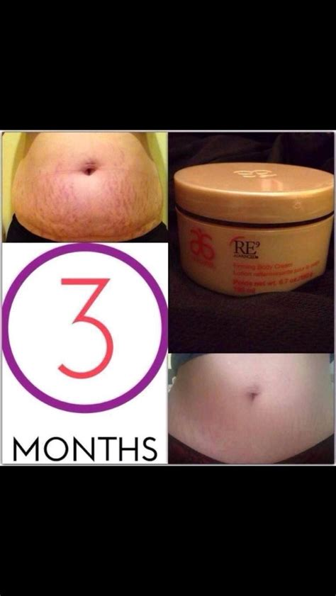what homemade remedy gets rid of cellulite picture 2
