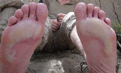 skin disease foot picture 1