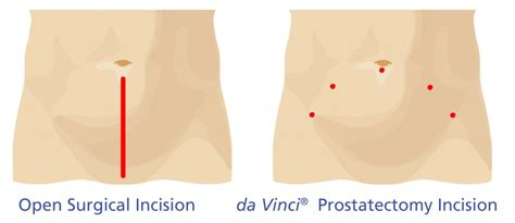 Laparoscopic prostatectomy picture 10