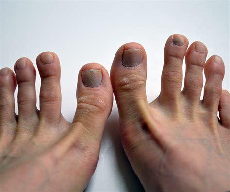 toenails picture 11