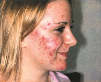 polyps and hormonal acne picture 10