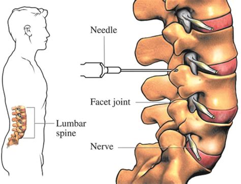 facet joint injections picture 14