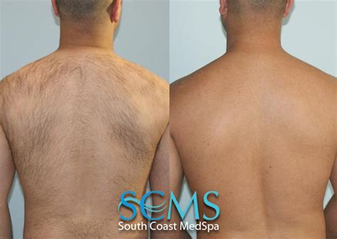 los angeles laser hair removal picture 2