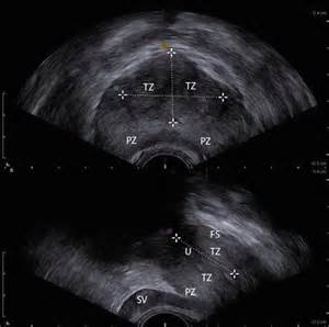 prostatic trans ultrasound picture 11