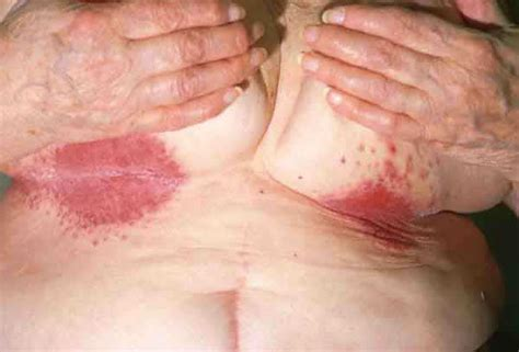 yeast infections in breasts picture 5