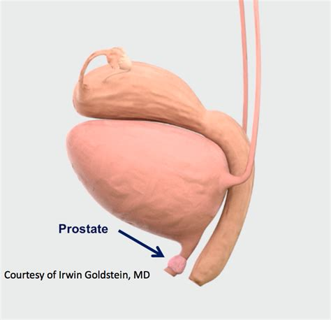women sexually examine prostate picture 3