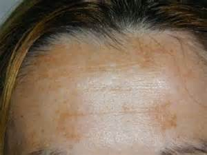 dark skin color around the lips picture 7