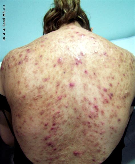 how to get ride if acne picture 7