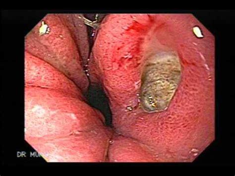 gamot sa gastric acid picture 1