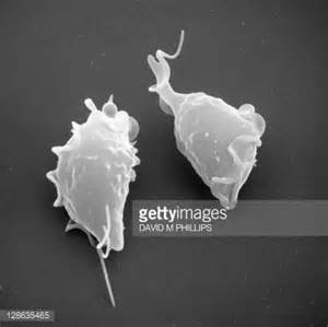 urinary tract parasites humans picture 5