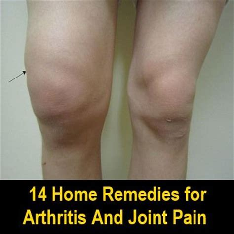 joint pain and barium picture 6