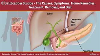 causes of sludge in gall bladder picture 4