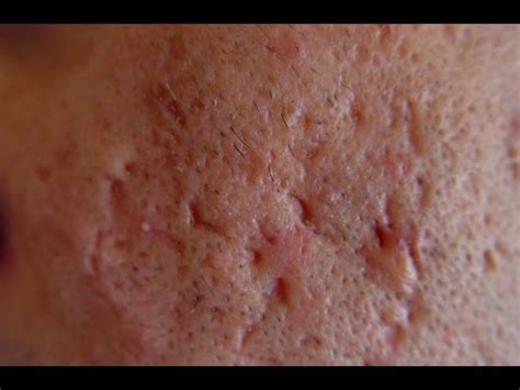 what causes acne scaring picture 3