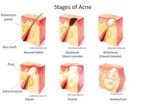 what causes acne picture 1
