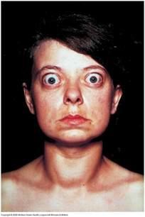 hyperthyroidism graves symptoms picture 1