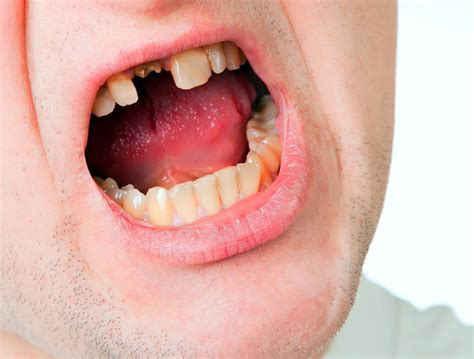 photos of people with teeth missing picture 10