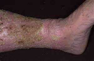 hemosiderin skin discoloration picture 13