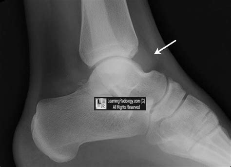 ankle joint effusion picture 5