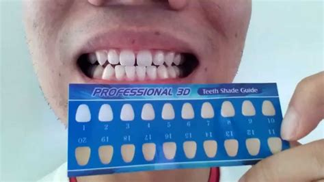 whitening strips to whiten lips picture 9