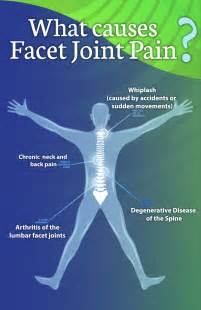strengthen spinal facet joints picture 6