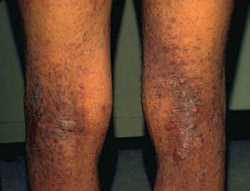darken eczema skin picture 22