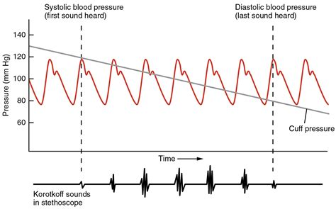 Superimposition principle with arterial blood pressure picture 14