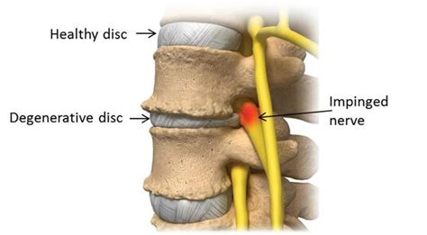 degenerative joint disease of cervical spine picture 1