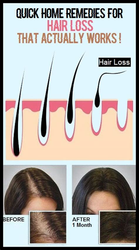 osi works hair loss picture 6