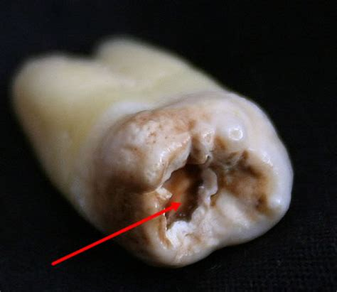 cavities in wisdom teeth picture 5