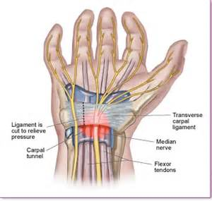 can tarcel tunnel syndrome give u pain in picture 18