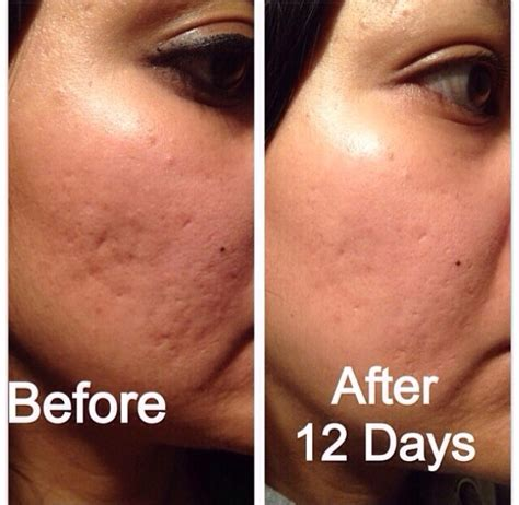 acne free in 3 days free picture 6