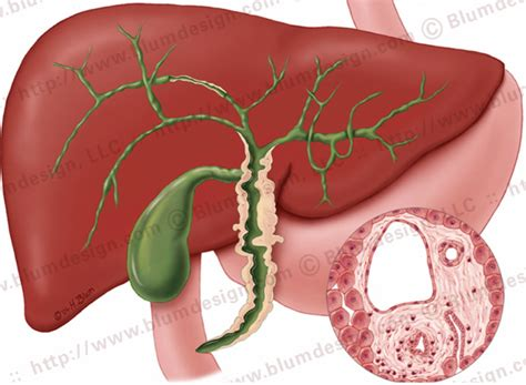 women and cirrhosis of the liver picture 3