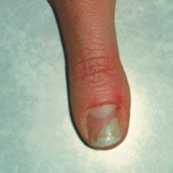 acrylic nail fungus symptoms picture 5