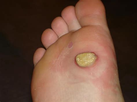 wart treatment beetles picture 9