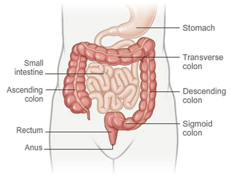 colon cancer and sex picture 4