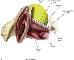 bladder prolapse repair picture 5