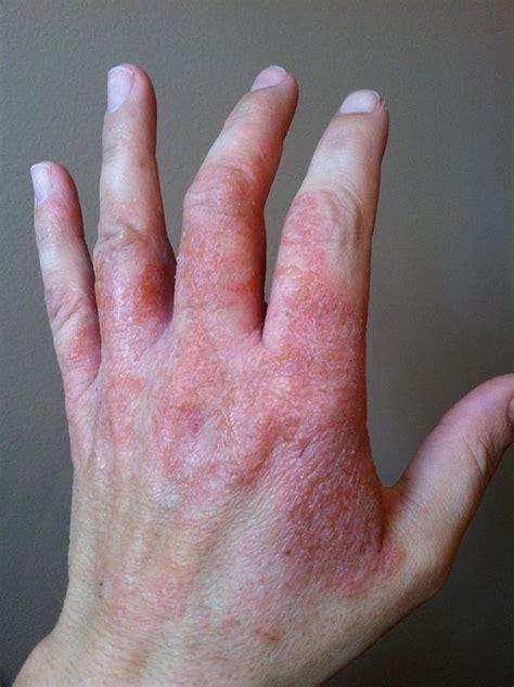 hand skin rash picture 6