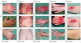 dermatologist for black skin picture 15