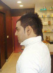 hair transplantation in noida sec 18 picture 2